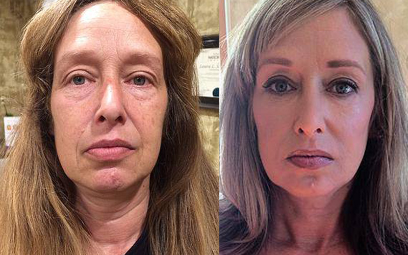 Makeover Before and After