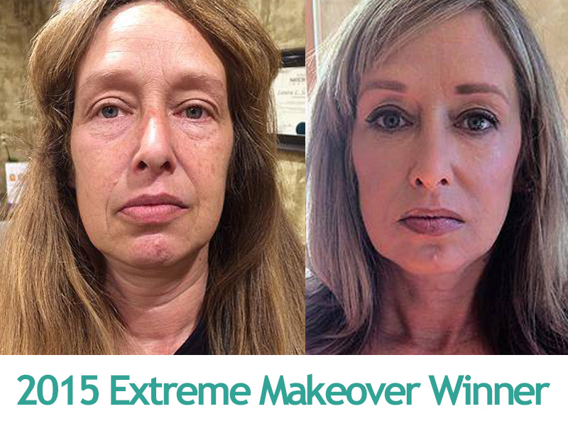 2015 Extreme Makeover Winner - Transformations Medical
