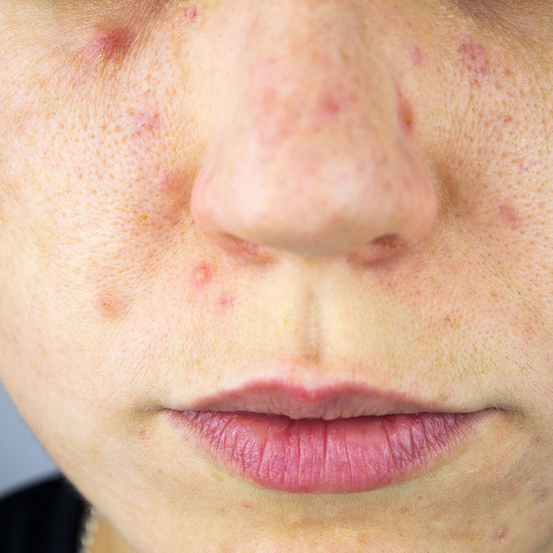 Young Woman with Acne Scars