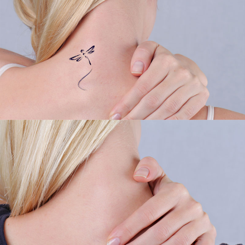 Non Invasive Tattoo Removal